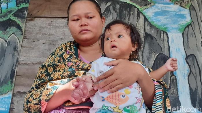 Pergelangan kanan Samara Kumaira Mariba, bayi berusia 11 bulan di Sragen terancam diamputasi, Jumat (6/3/2020).