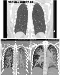 Claire Chung curhat tentang kerusakan paru-paru karena rokok elektrik