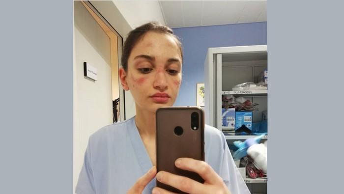 perawat dengan wajah memar