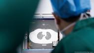 Studi: Pasien yang Pulih dari Corona Bisa Alami Penurunan Fungsi Paru-paru