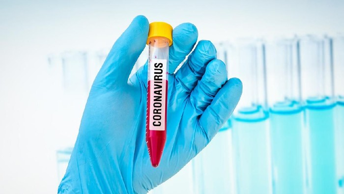 Hand of scientist is holding a test-tube with positive blood test on CORONAVIRUS