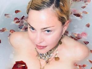 Penampilan Madonna Pamer Bekas Luka Pada Tubuhnya di Medsos dengan Bangga