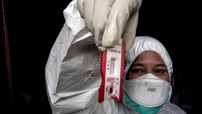 Virus corona: Metode, efektivitas, dan pelaksanaan rapid test Covid-19 oleh pemerintah