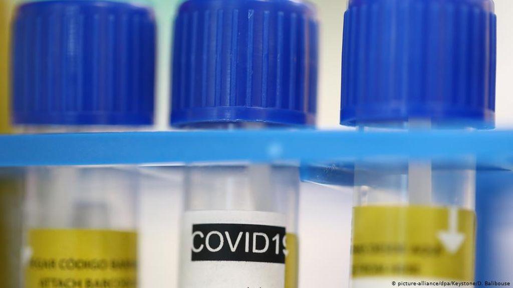 Perusahaan Jerman Bosch Luncurkan Alat Tes Cepat Virus Corona 2,5 Jam