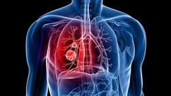 6 Organ Pernapasan Manusia Lengkap Beserta Fungsinya