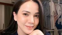 Alice Norin Kehilangan Darah 3 Liter saat Melahirkan Anak Kedua