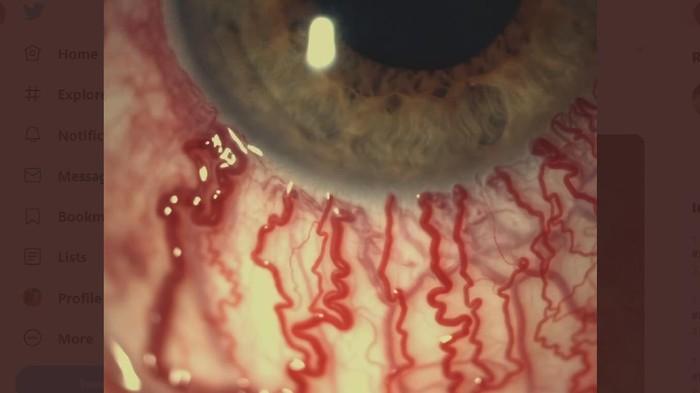 Viral penampakan dari dekat mata merah akibat menangis.