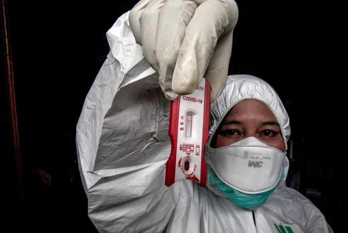 Selama ini kita mengenal metode untuk menentukan warga terinfeksi virus corona melalui rapid test dan PCR, namun baru-baru ini WHO menyarankan agar tidak mendeteksi COVID-19 menggunakan rapid test.