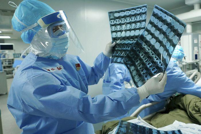Seorang pakar kesehatan China menyebut vaksin virus Corona mungkin bisa tersedia untuk penggunaan darurat mulai September dan untuk publik mulai awal tahun depan.