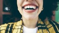 Beli Veneer Harga Terjangkau, Mulut Wanita Ini Tidak Bisa Tertutup