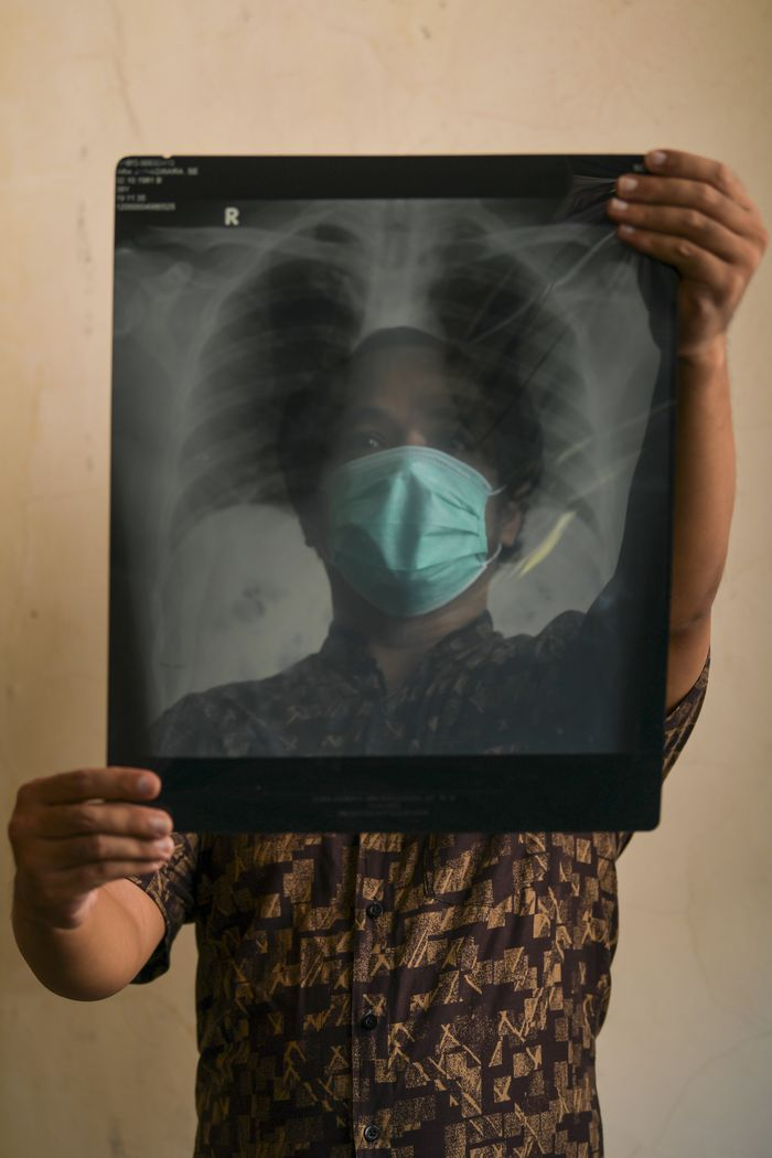 Ara Wiraswara (39), seorang ASN, menunjukkan hasil rontgen paru-paru miliknya di Bogor. Dari pengalaman Ara selama menjalani isolasi di RSUD Kota Bogor, Jawa Barat, dukungan moral sangat dibutuhkan oleh pasien.