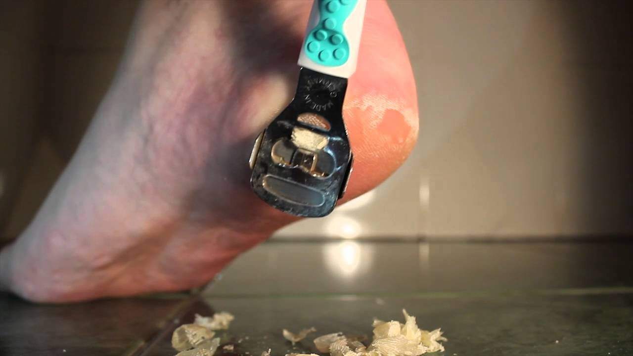 Prank keju parut campur kulit kering kaki