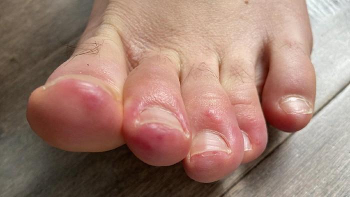 Covid toes atau ruam pada kaki pasien corona