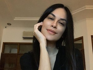 Viral Hasil Rontgen Sophia Latjuba, Cantiknya Sampai Tengkorak Wajah