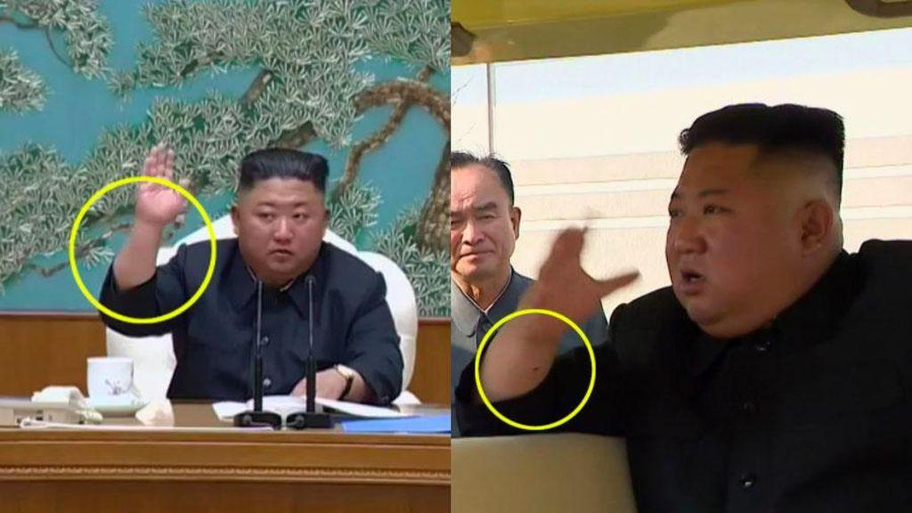 Tanda Bekas Operasi Kim Jong Un yang Masih Jadi Teka-teki