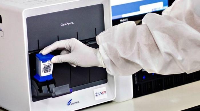Mesin GeneXpert yang biasa digunakan untuk tes TBC, akan digunakan untuk tes Corona. (USAID via Unitaid)