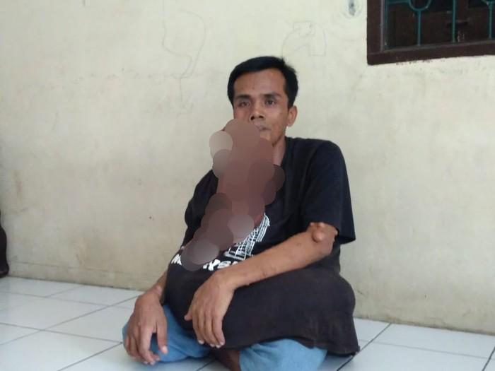 Sakit misterius pria di Medan (Datuk Haris Molana-detikcom)