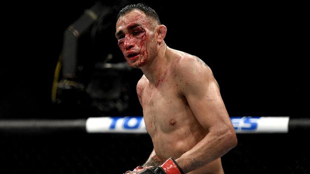 JACKSONVILLE, FLORIDA - MAY 09: Tony Ferguson of the United States looks on against Justin Gaethje of the United States after their Interim lightweight title fight during UFC 249 at VyStar Veterans Memorial Arena on May 09, 2020 in Jacksonville, Florida.   Douglas P. DeFelice/Getty Images/AFP