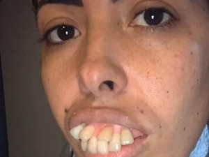Transformasi Wanita Bergigi Tonggos Jadi Viral, Berujung Netizen Kena Prank