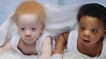 Potret Bayi Kembar yang Terlahir Beda Warna Kulit