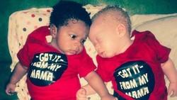 Bayi kembar asal Lagos ini terlahir dengan perbedaan yang cukup mengejutkan, salah satu diantaranya memiliki Albinisme sehingga memiliki warna kulit putih pucat