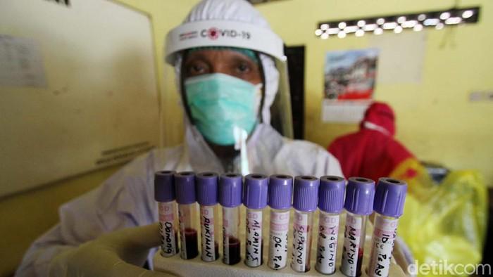 Pemkot Solo melakukan Rapid test Corona. Rapid tes dilakukan di pasar Modern Luwes Gading dan Pasar Ayam Silir, Surakarta.