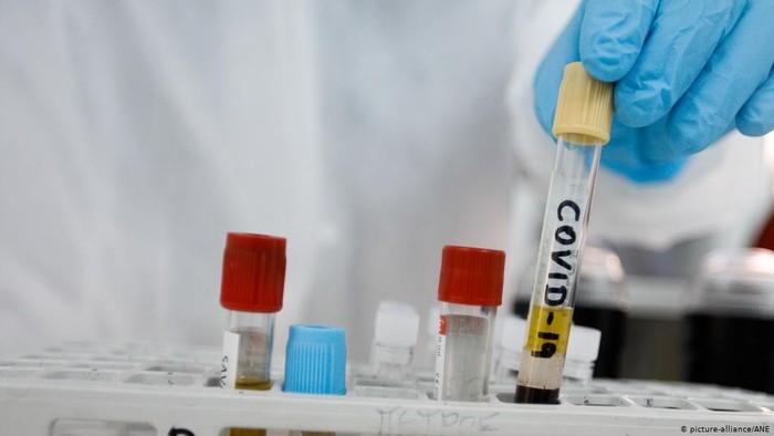 Pengujian Vaksin Corona Pada Manusia Mulai Tunjukkan Harapan