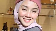 Penampilan Cantik Wanita yang Dulu Dibully Muka Sampah karena Gigi Ompong