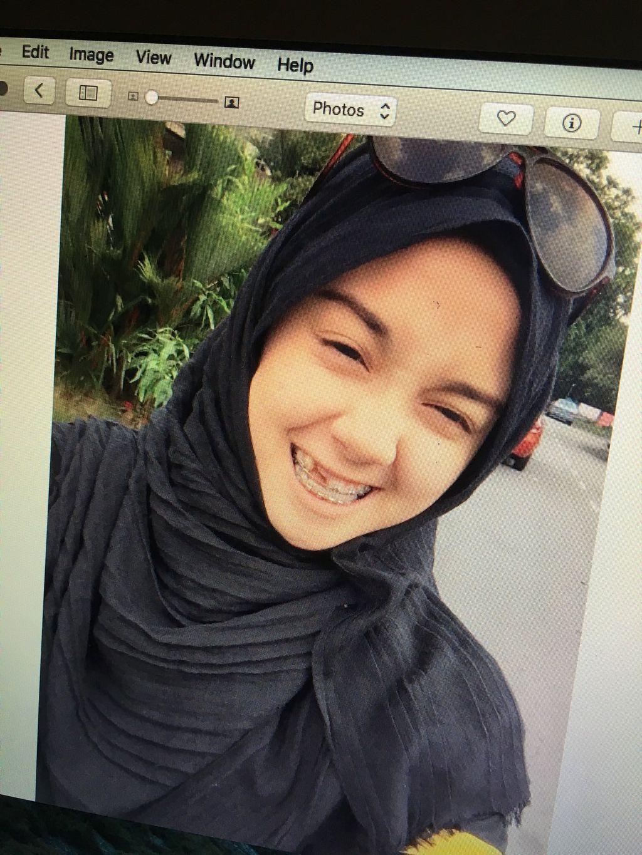 Nurin Afiqah memiliki gigi tak sempurna dan kerap dibully