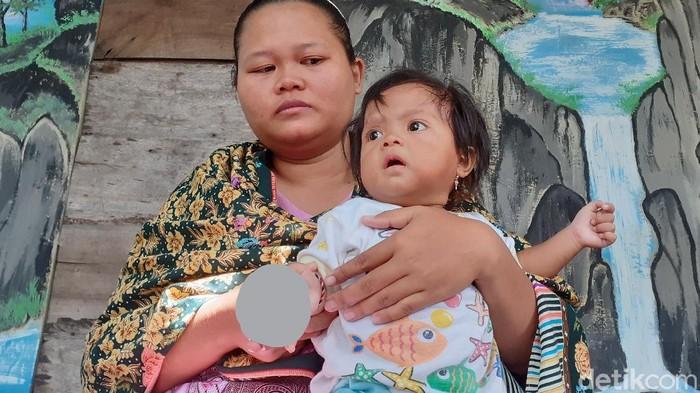 Tsamara Kumaira Mariba, balita di Sragen yang tangan kanannya infeksi usai digigit kutu kucing, Jumat (6/3/2020).