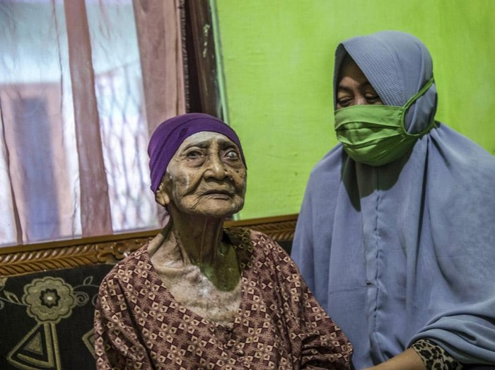 Seorang nenek berusia 100 tahun, Kamtim, sembuh dari COVID-19. Nenek asal Dusun Gendong, perbatasan Surabaya dan Gresik ini dinyatakan sembuh usai dirawat selama satu bulan di rumah sakit.