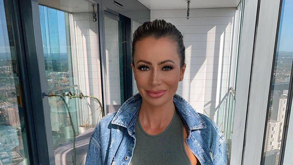 Efek Botox Hilang, Bintang Reality Show Ini Tak Kenali Wajahnya Sendiri