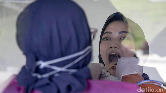 Kabar baik bagi warga Depok. Rumah Sakit Universitas Indonesia (RSUI) memberikan layanan swab test PCR virus Corona tanpa biaya alias gratis untuk warga Depok.