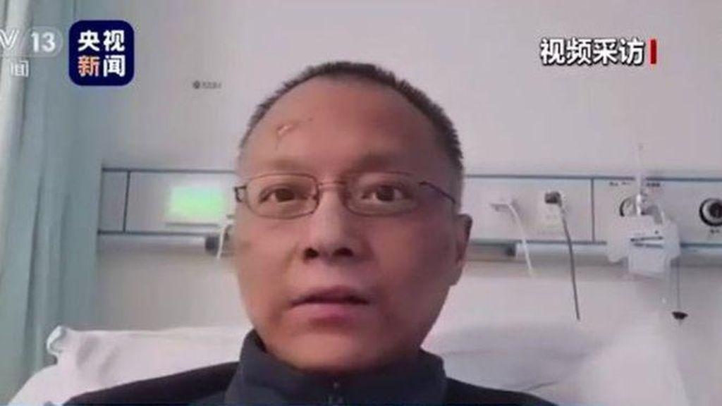 Dokter di China yang Kulitnya Jadi Hitam karena Corona Meninggal Dunia
