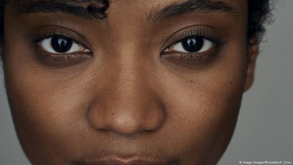 Bagaimana Situasi Warga Kulit Hitam di Jerman Terkait Rasisme-Diskriminasi?