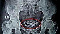 Mengejutkan! Kabel Charger Bersarang di Kandung Kemih Pria Ini
