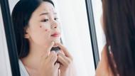 Ini Aturan Pakai Skincare di Masa Pandemi Biar Tidak Jerawatan