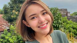 Ingin Cantik Natural, Amanda Manopo Tak Mau Operasi Plastik