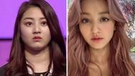 Perubahan Wajah Artis Korea Sebelum dan Sesudah Diet yang Bikin Pangling