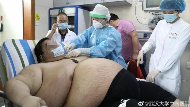 Zhou, pria obetitas yang berat badannya naik lebih dari 90 kg selama lockdown.