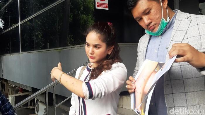 Hana Hanifah saat ditemui di Polda Metro Jaya.