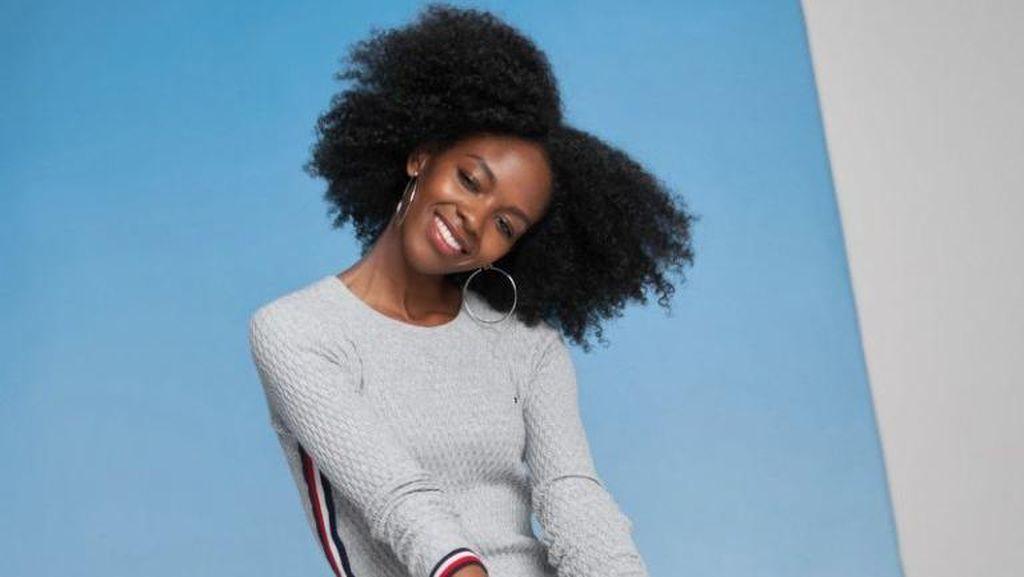 Potret Menawan Model Vogue yang Kehilangan Sebelah Kaki karena Ditabrak