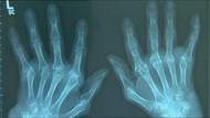 Kasus Penyakit Autoimun Meningkat Drastis di Jerman