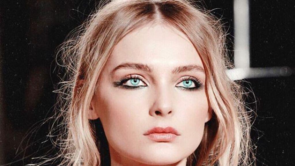 Foto: Top Model Dunia Ini Jadi Korban KDRT, 10 Tahun Dipukuli Suami