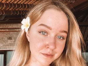 Wasiat Influencer Tajir Sebelum Tewas di Bali Karena Kecelakaan Motor