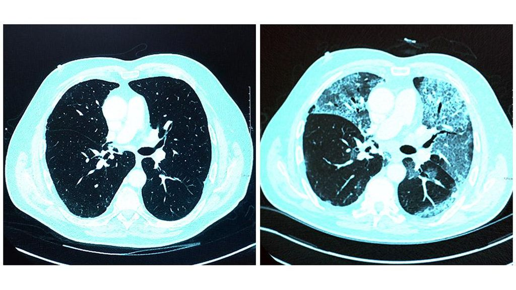 Ribuan Orang Mantan Pasien Corona Terancam Gangguan Fibrosis Paru