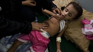 Potret Anak-anak Yaman yang Terancam Kelaparan