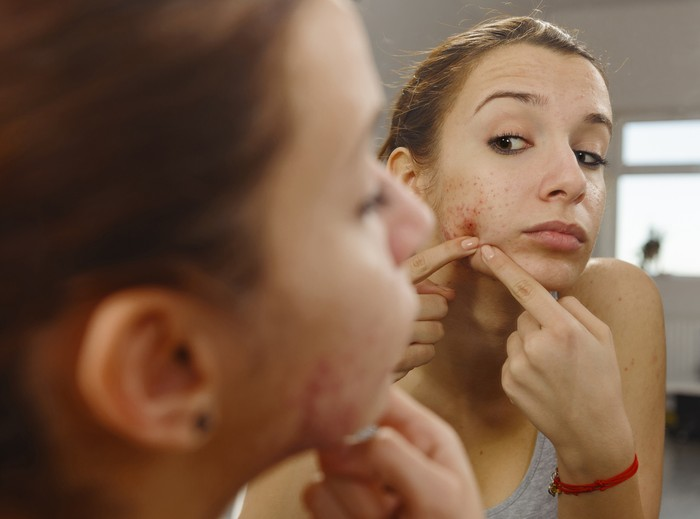 teenager portrait with acne looking in the mirror.