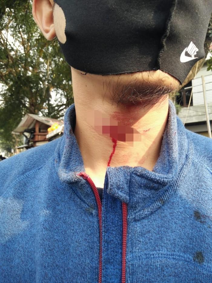 Pemotor yang melintas di Cimahi lehernya terluka tersabet benang layangan