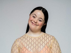 Inspiratif, Remaja Down Syndrome Jadi Model Gucci dan Vogue